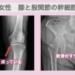 膝と股関節の幹細胞治療