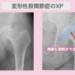 変形性股関節症の幹細胞治療