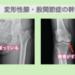 変形性膝関節症と変形性股関節の再生医療